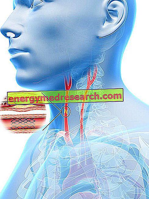 Kedy cvičiť karotickú angioplastiku so stentovaním?