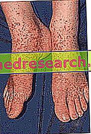 Vaskulitis: Diagnoza in zdravljenje