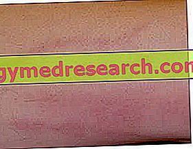 hipertenzija ir tromboflebitas hipertenzijos vaistų pasirinkimas