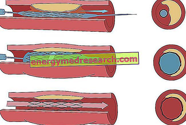 Karotīdu angioplastika ar stentēšanu: procedūra