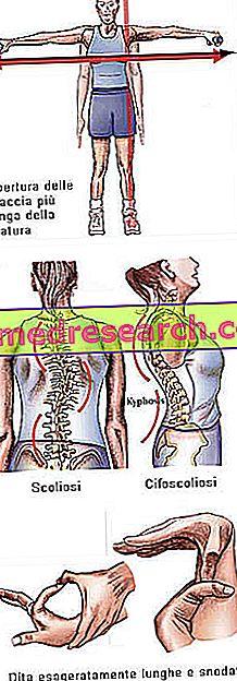 Marfanov sindrom