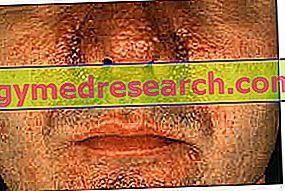 Tuberousskleroosi