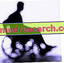 Duchenne raumenų distrofija