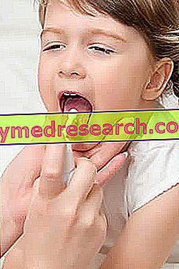 Tonsillitis gyógyszerek