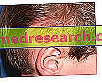 Cekari rambut - Tinea Capitis - Cacing kurus kanak-kanak