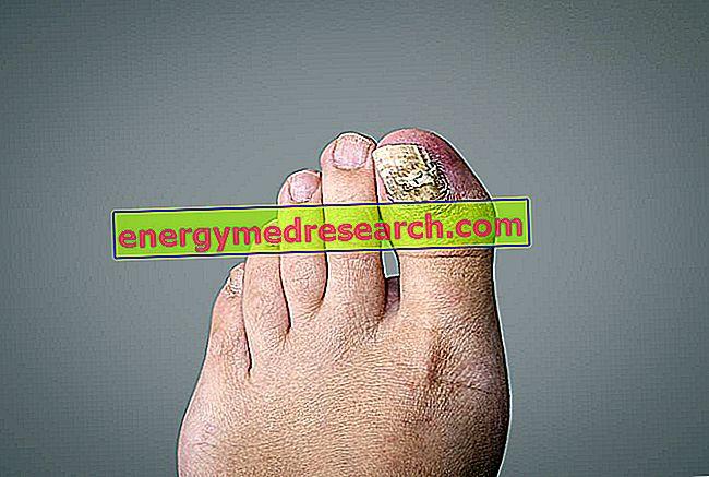 Onychomycosis: kāpēc tas galvenokārt ietekmē pēdas?