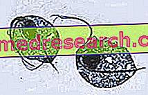 Trichomonas trichomoniasis