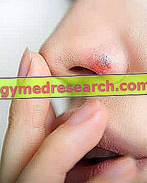 Remèdes contre l'herpès nasal