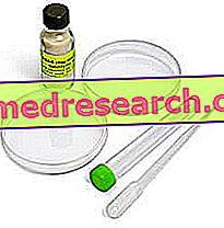 VDRL 및 TPHA : Siflide의 혈액 검사