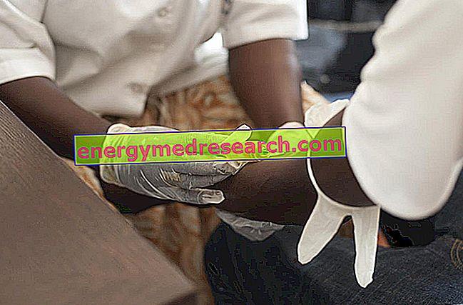 Ebola: Hvorfor forsøks plasmadransfusjon fra konvaleserende personer?