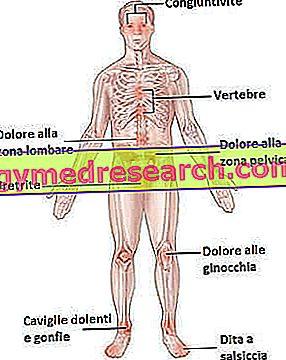 Reiter syndrome
