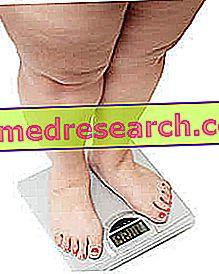 Дијета за гојазност