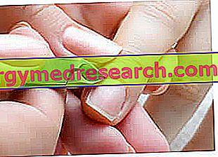 Onychophagy: konsekwencje, opieka i terapia