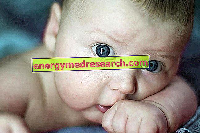 Kas yra įgimta glaukoma?