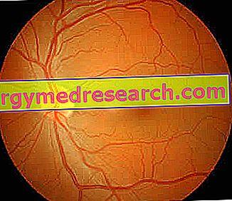 Hypertensive Retinopathie