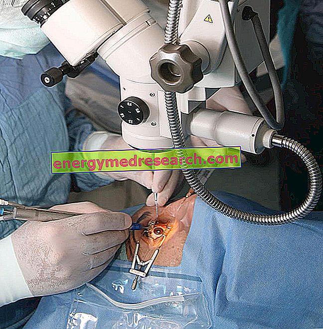 Ragenos transplantacija: atmetimas ir kitos galimos komplikacijos