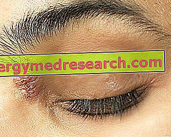 akių komplikacijos su hipertenzija