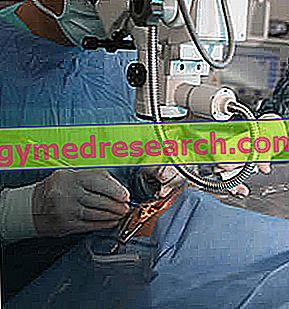 Hoornvlies transplantatie