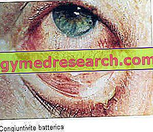 Bakteriális kötőhártya-gyulladás