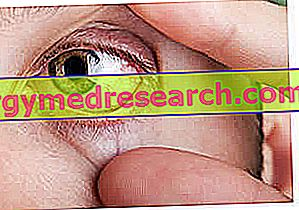 Diabeetiline retinopaatia - diagnoosimine ja ravi