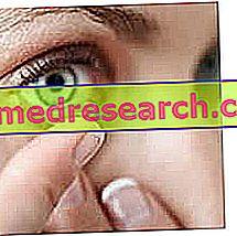 Kontakt Lensler - Muhtemel Komplikasyonlar