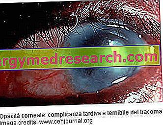 Tracoma: Diagnóstico y Prevención