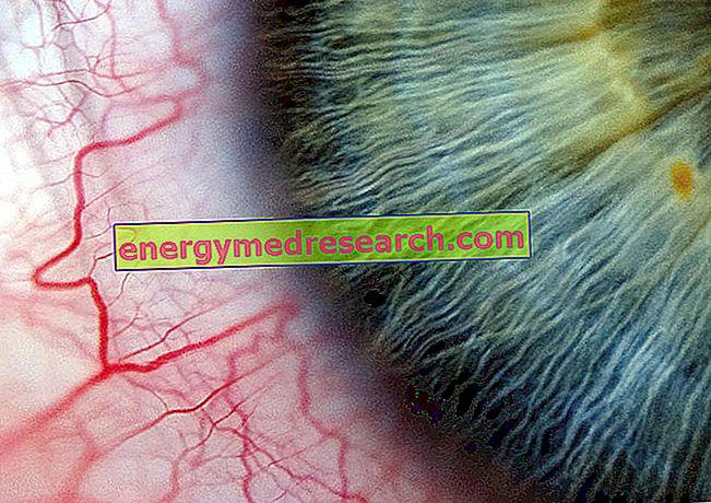 Apakah kesan hipertensi arteri sistemik pada mata?