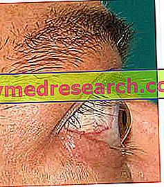 Екзофтальм (виступаючі очі)