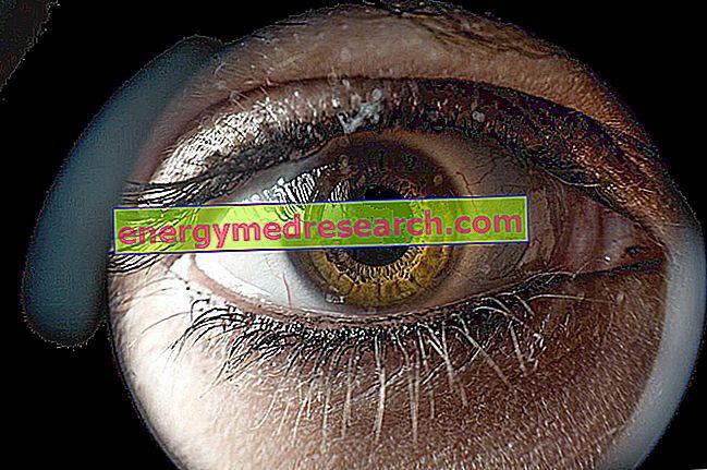 Псеудоексфолијативни глауком и пигментни глауком