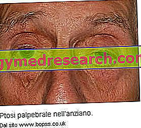Ptosis kelopak mata (kelopak mata terkulai)