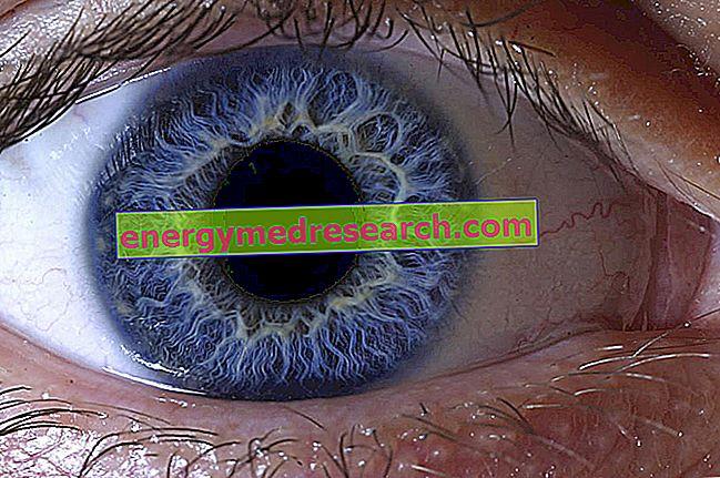 Cuando el ojo arregla un objeto es estable o no?