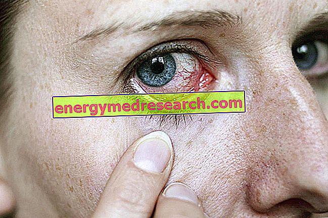 Jakie komplikacje wiążą się z alergią oczu?