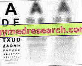 Ambliopija (lijeno oko)