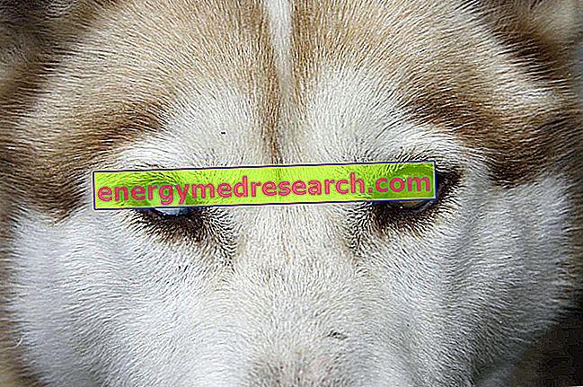 Heterochrominės akys: dvi akys, dvi skirtingos spalvos