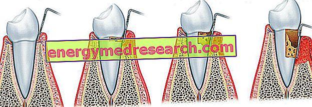 Penyebab Periodontitis: bakteri mana yang menyebabkan periodontitis?