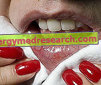 التهاب الغشاء المخاطي