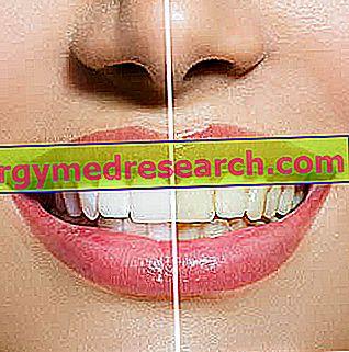 Geltoni dantys
