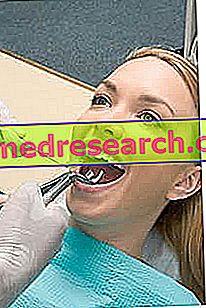 Sakit gigi: apa yang harus dilakukan