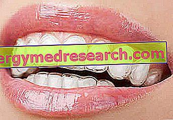 Heilmittel für gelbe Zähne
