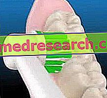 Электрическая зубная щетка: описание, достоинства и недостатки