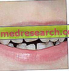Кариес от млечни зъби