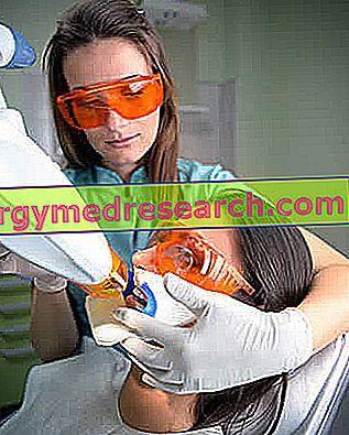 Λεύκανση δοντιών λέιζερ