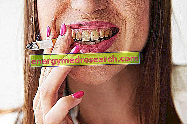 Mengapa merokok noda gigi?