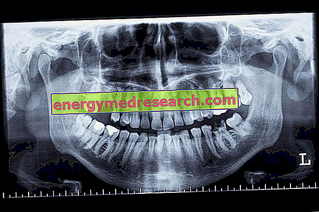 Zobu pārskats: ortopantomogrāfija