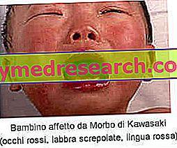 Kawasaki sygdom