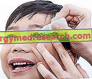 Επιπεφυκίτιδα στο παιδί