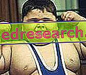 Prevence dětské obezity prostřednictvím hry a tréninku