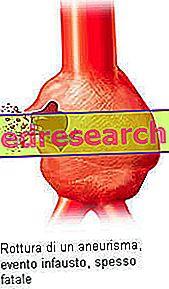 Aneurizma - simptomi, diagnoza in zdravljenje