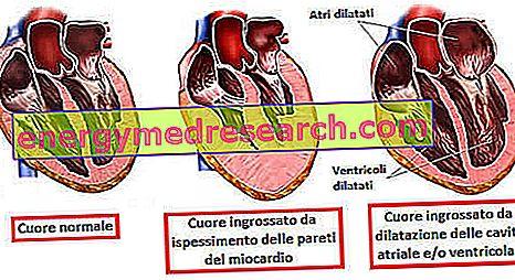 Povećano srce - kardiomegalija