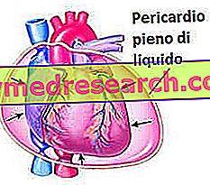 Καρδιακή ταμπόν